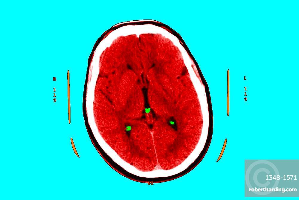 Hyperflash in the two nuclei and particularly the putamen, and the two thalamus.