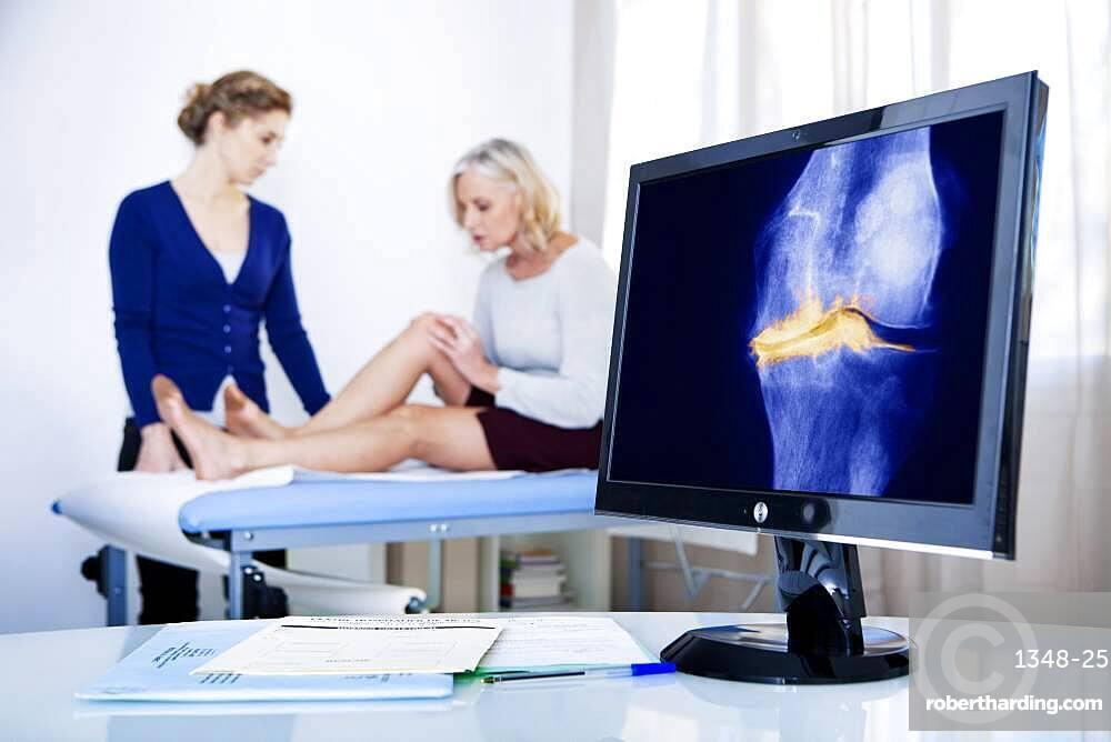 X-ray of a knee arthrosis.