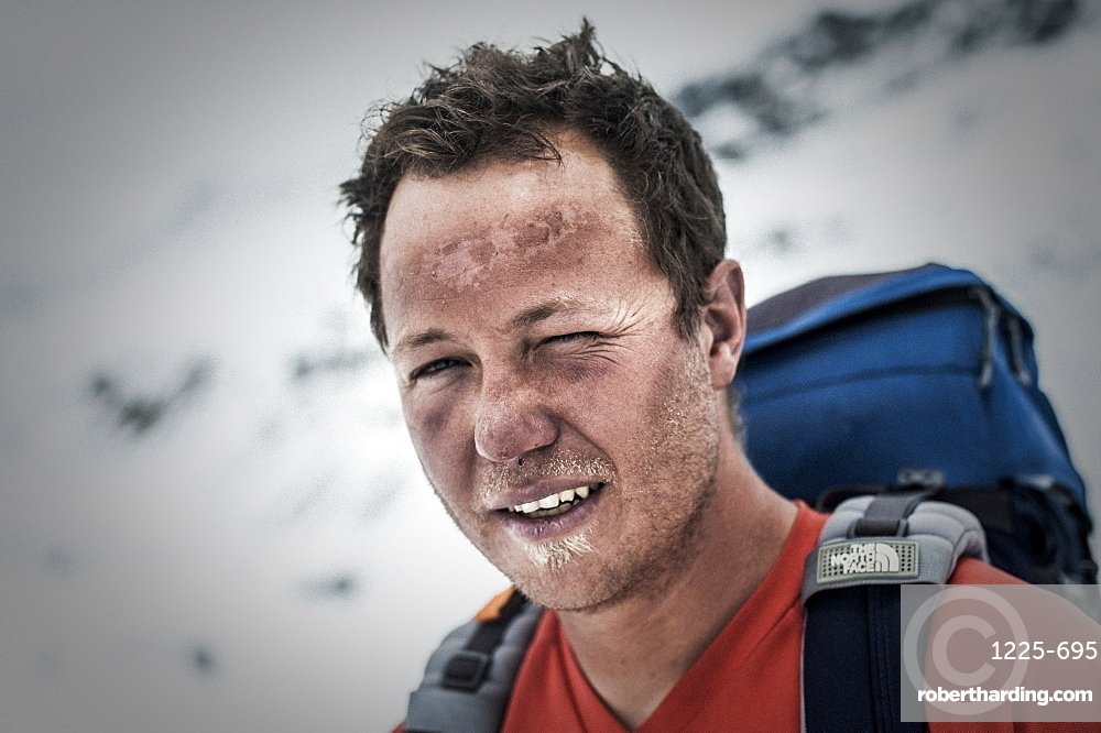 A climber at Everest Base Camp the day after he has successfully summited Everest showing signs of exposure at high altitude, Khumbu Region, Nepal, Asia
